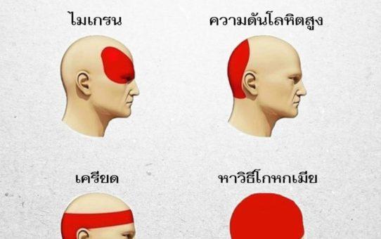 อาการปวดหัวแบบต่างๆ